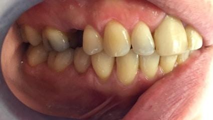 Implantaat in bovenkaak laten plaatsen voor