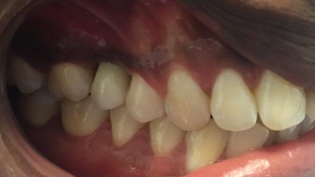 implantaat bovenkaak everon tandartsenkliniek rijswijk na
