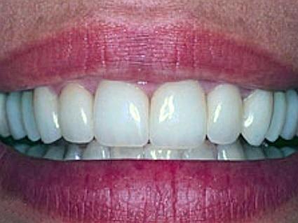 tanden laten bleken zoetermeer na