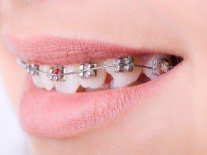 orthodontist rijswijk beugel