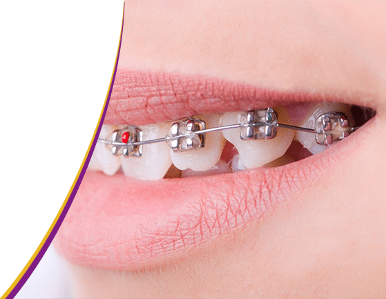 Orthodontist Rijswijk