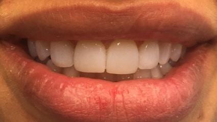 facings-tanden-bleken-zoetermeer-na
