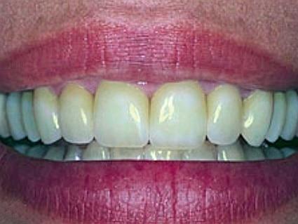 tanden-laten-bleken-zoetermeer-voor