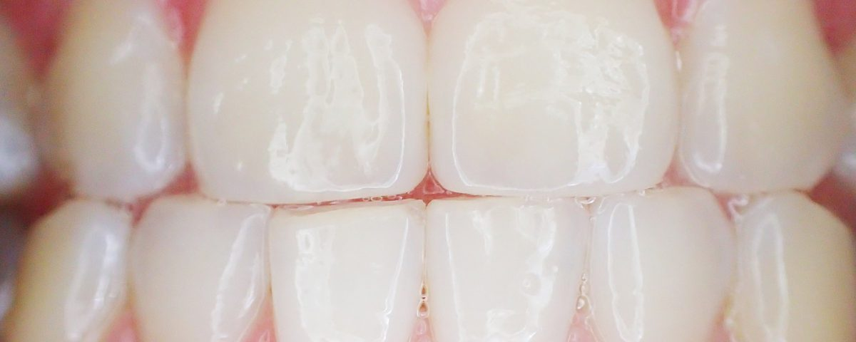tandvlees stimuleren